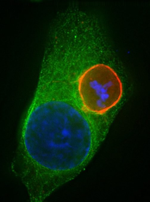 Liver stage with Actin is shown. Credit: Center for Infectious Disease Research.