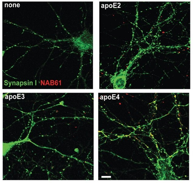 ApoE4 enhances colocalization of oligomeric amyloid-β with synaptic elements in vitro. For in vitro experiments, cultured mouse neurons were treated with oligomeric amyloid-β-containing media and lipidated apoE particles for 48 h, fixed, permeabilized and immunostained to determine the level of colocalization between oligomeric amyloid-β, apoE and presynaptic elements. ApoE4 treated cultured neurons showed enhanced localization of oligomeric amyloid-β at synaptic sites. While all isoforms of apoE colocalized with synaptic elements to a marked extent. Apolipoprotein E4 effects in Alzheimer's disease are mediated by synaptotoxic oligomeric amyloid-β. Jones et al 2012.