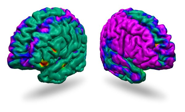 Images of the right and left hemispheres of the brain, as viewed from the side. The colors represent the differences in cortical thickness between the high-risk group, which has a family history of depression, and the low-risk group, which has no known risk. Blue and purple represent the thinning of the cortex, with purple regions having the greatest thinning. Green areas show no significant differences between the two groups. Credit Dr. Bradley S. Peterson/Columbia University