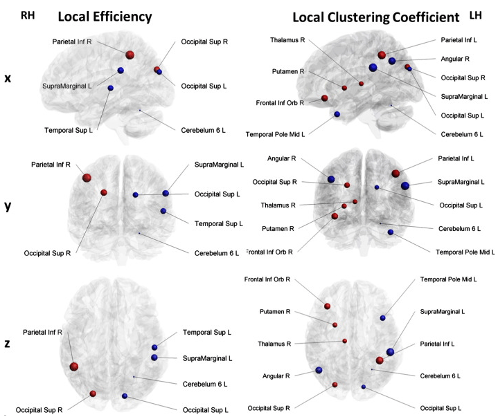Nodes exhibiting significant group differences in local efficiency and local clustering. The sizes of the spheres are based on local efficiency and local clustering estimates in the ADHD group, blue color represents significantly lower local efficiency and local clustering in the ADHD group, red color represents significantly higher local efficiency and local clustering in the ADHD group. RH – right hemisphere; LH – left hemisphere; x, y, z – anatomical planes.  Whole-brain structural topology in adult attention-deficit/hyperactivity disorder: Preserved global – disturbed local network organization.  Wiersema et al 2015.