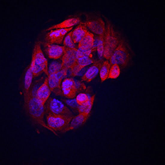 Angiopoietin-like Protein 8/Betatrophin in HepG2 Human Cell Line.  ©2016 R&D Systems, Inc. All Rights Reserved.