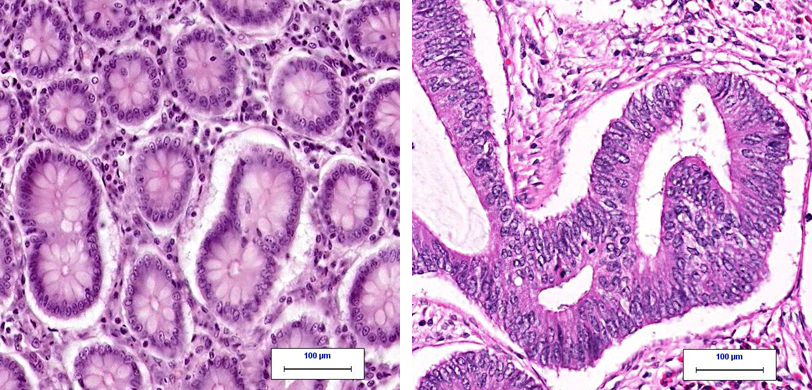 Left: normal colon tissue under the microscope. Right: colon cancer under the microscope. From CAP: MyBiopsy