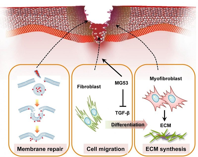 This image shows modulation of wound healing and scar formation by MG53-mediated cell membrane repair and TGF-β signaling regulation. Credit: Li.et.al., 2015.