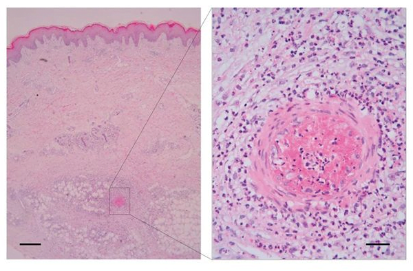 Clinical and immunological features of PAAND.   Histologic presentation of inflammatory infiltrate in the subcutis, involving subcutaneous vessels and extending into the surrounding panniculus and deep dermis. Scale bar, 500 μm. Higher magnification shows predominantly polymorphonuclear vascular and perivascular infiltrate (representative from patient II.7). Scale bar, 50 μm.  Familial autoinflammation with neutrophilic dermatosis reveals a regulatory mechanism of pyrin activation.  Liston et al 2016.