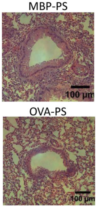 Prophylactic treatment with OVA-PS inhibits Th2-mediated airway inflammation. Naive female BALB/c mice (n=5) were treated i.v. with 1.25 mg of OVA-PS or control lysozyme-PS (A, B, and D) or MBP-PS (C) on days -7 and +7 relative to i.p. immunization with 10μg of OVA in 3 mg of alum or alum alone on days 0 and +14 before aerosol challenge with 10 mg/mL OVA for 20 min on days +28 –30 and sample collection on day +31.  Lungs were fixed in formalin and stained with H&E.  Biodegradable antigen-associated PLG nanoparticles tolerize Th2-mediated allergic airway inflammation pre- and postsensitization.  Miller et al 2016.