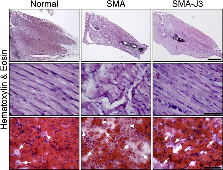 From left to right: Microscopic images comparing the hind leg muscles of normal mice, mice with spinal muscular atrophy, and mice with spinal muscular atrophy that have had the enzyme JNK3 inhibited. JNK3 deficiency appears to reduce muscle degeneration (muscle-wasting) and increase muscle growth in mice with the disease.  Credit: Image courtesy of the journal Human Molecular Genetic.