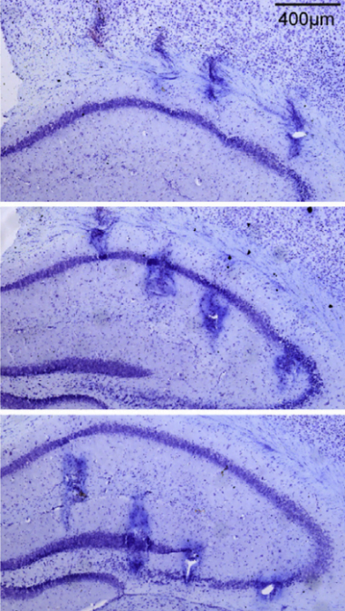 LFP Recording of Hippocampal Network Activity in ApoE3-KI and ApoE4-KI Mice.  Representative Nissl staining of brain sections after electrolytic lesioning indicates probe placement, shown in sequential coronal sections.  Apolipoprotein E4 Causes Age-Dependent Disruption of Slow Gamma Oscillations during Hippocampal Sharp-Wave Ripples.  Huang et al 2016.