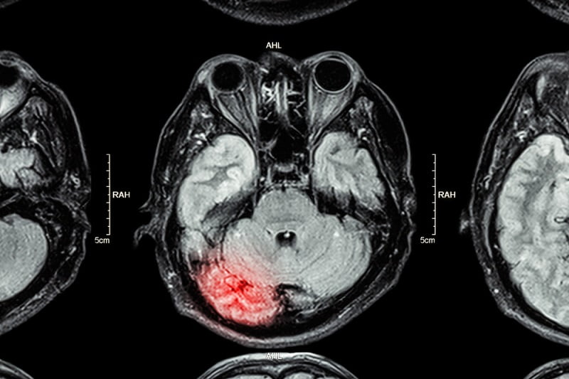 Link Found Between Traumatic Brain Injury and Late-Life Parkinson's, but Not Alzheimer's Disease - healthinnovations