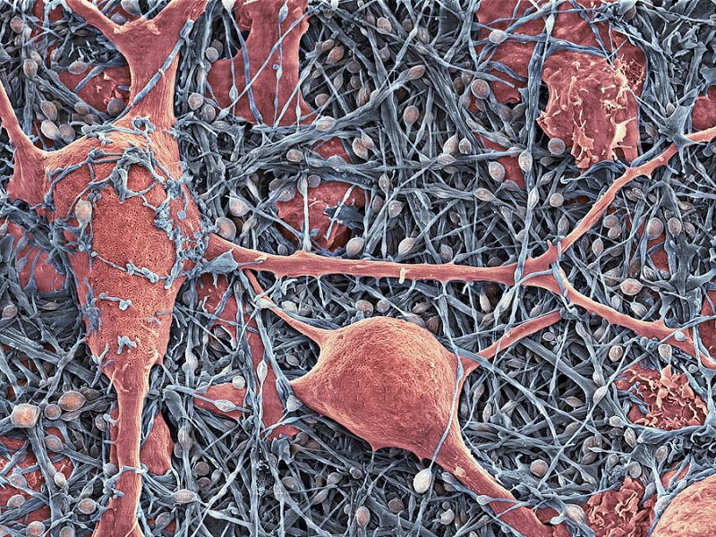 Nerve cells and glial cells, coloured scanning electron micrograph (SEM). The nerve cells have small cell bodies (blue/pink) and fine extensions called axons and dendrites (blue). The glial cells (red) have large cell bodies with thicker extensions. Neurons are responsible for passing information around the central nervous system (CNS) and from the CNS to the rest of the body. Glial cells are nervous system cells that provide the neurons with structural support and protection.  Credit: Thomas Deerinck, Ncmir which was uploaded on May 8th, 2013.