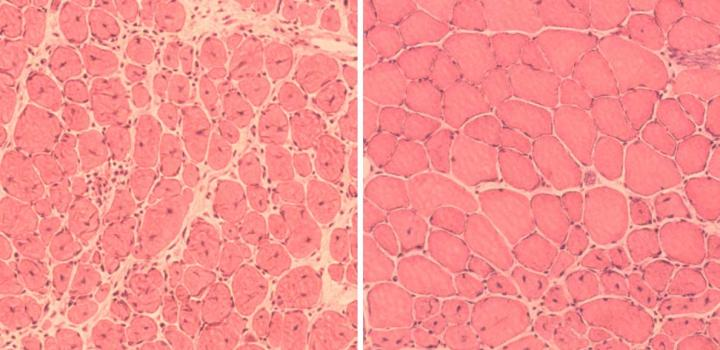 This image shows the discovery by researchers that induction of partial cellular reprogramming improved muscle regeneration in aged mice. (Left) Impaired muscle repair in aged mice; (Right) Improved muscle regeneration in aged mice subjected to reprogramming.  Credit: Courtesy of Juan Carlos Izpisua Belmonte Lab /Salk Institute.