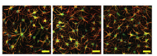 ft-brain-astrocytes-linked-to-alzheimer_s-disease-neuroinnovations