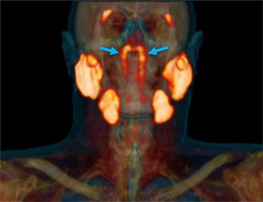 Researchers discover a new organ with vast implications for cancer patients. The blue arrows denote the newly discovered tubarial glands.