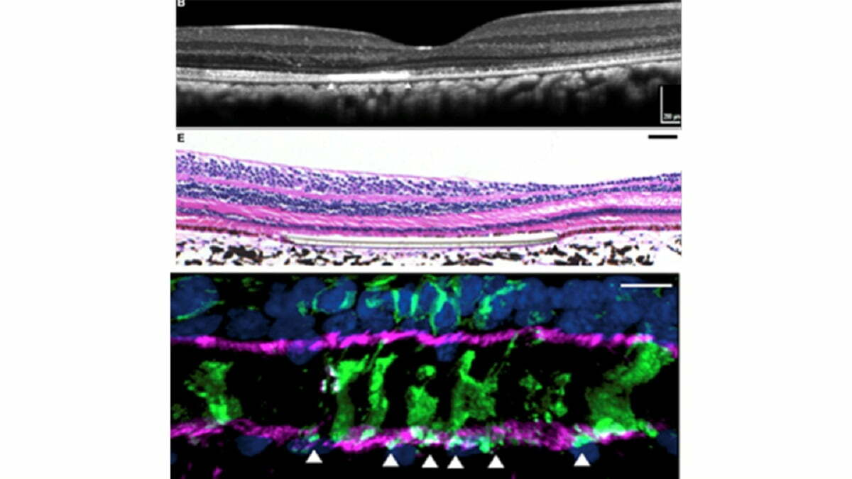 art work for Retinal cell transplant clears experimental hurdle toward treating blindness written by Healthinnovations