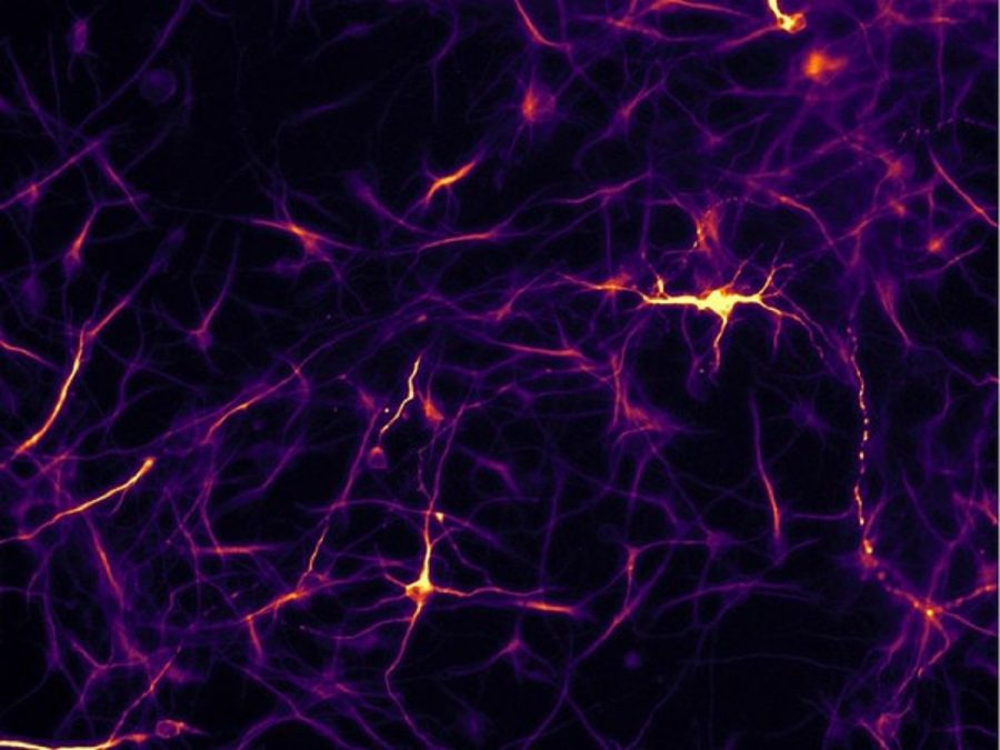 Neurons differentiated with artificial cells shown through a fluorescence microscope at 20X magnification. PHOTO BY SUPPLIED /University of Alberta
