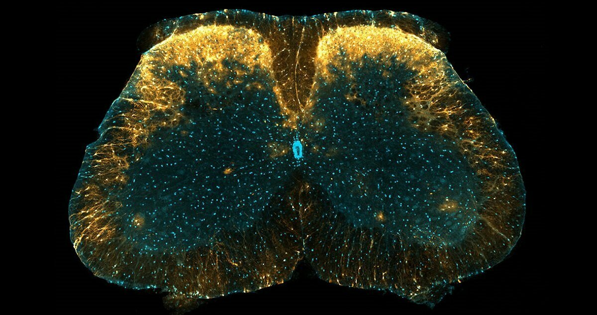 artwork for healthinnovations post covering newly discovered astrocytes implicated chronic pain
